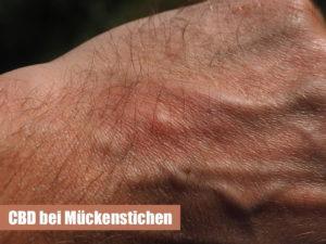Hilft CBD bei Mueckenstichen / Insektenstichen